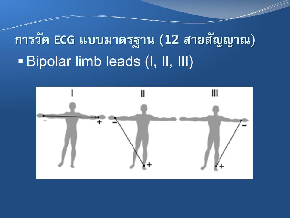 การวัด ECG แบบมาตรฐาน ( 12 สายสัญญาณ )  Bipolar limb leads (I, II, III)
