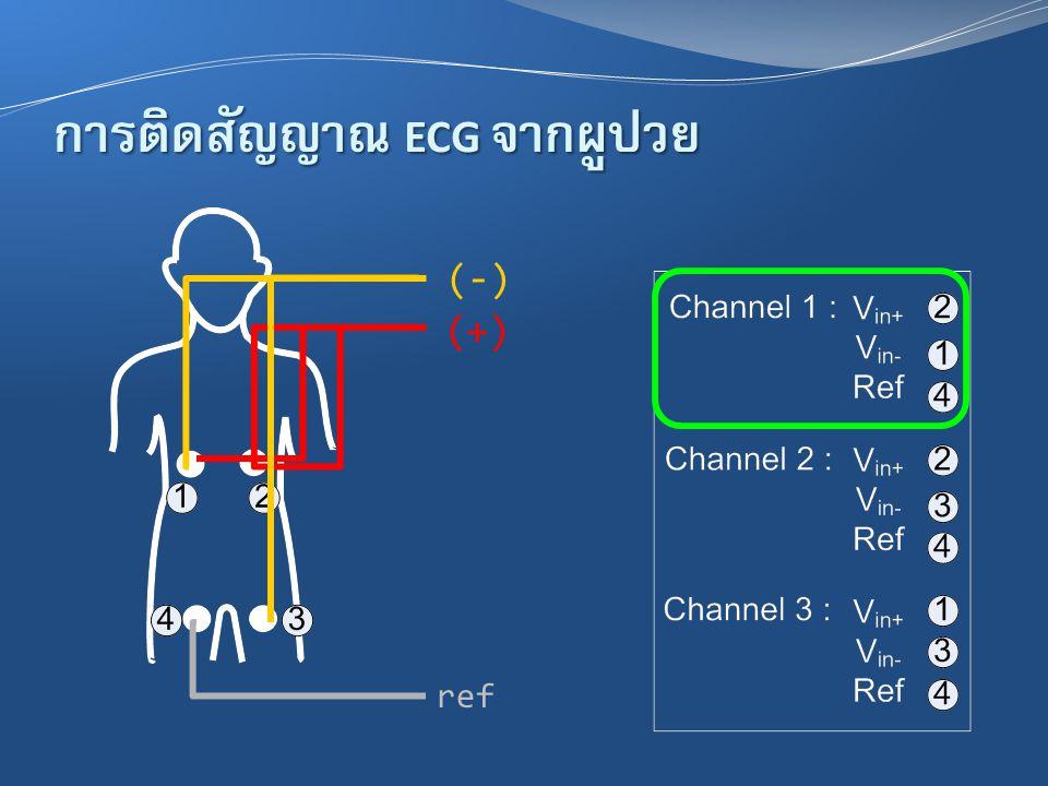 การติดสัญญาณ ECG จากผู้ป่วย (-) (+) ref