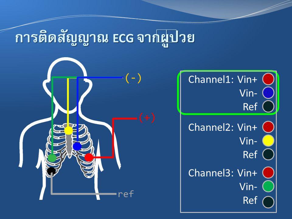 การติดสัญญาณ ECG จากผู้ป่วย (-) (+) ref Channel1: Vin+ Vin- Ref Channel2: Vin+ Vin- Ref Channel3: Vin+ Vin- Ref