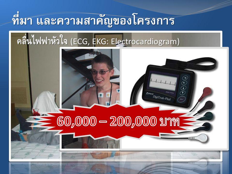 ที่มา และความสำคัญของโครงการ คลื่นไฟฟ้าหัวใจ (ECG, EKG: Electrocardiogram)