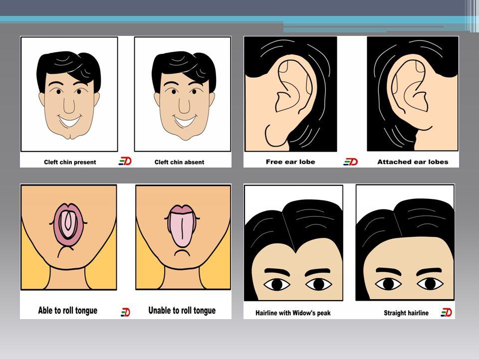 Edwards Syndrome มือกำ ท้าย ทอยโหนก ใบหูผิดรูป และเกาะต่ำ