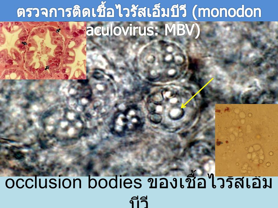occlusion bodies ของเชื้อไวรัสเอ็ม บีวี