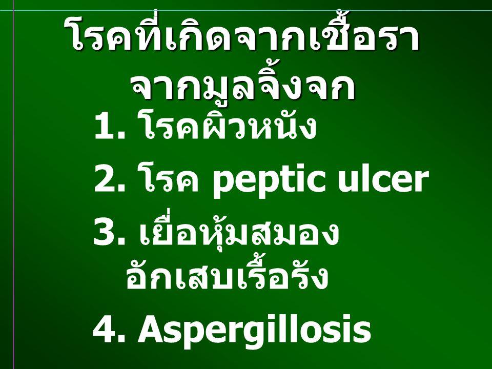 โรคที่เกิดจากเชื้อรา จากมูลจิ้งจก 1. โรคผิวหนัง 2. โรค peptic ulcer 3. เยื่อหุ้มสมอง อักเสบเรื้อรัง 4. Aspergillosis