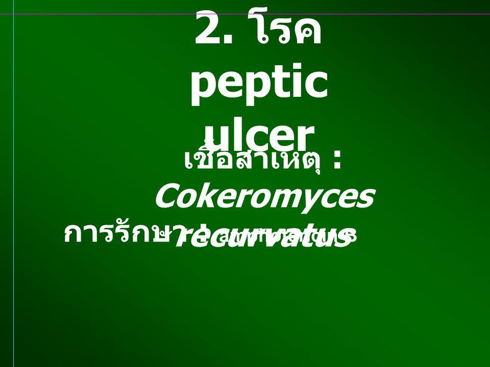 2. โรค peptic ulcer เชื้อสาเหตุ : Cokeromyces recurvatus การรักษา : amphotericin B