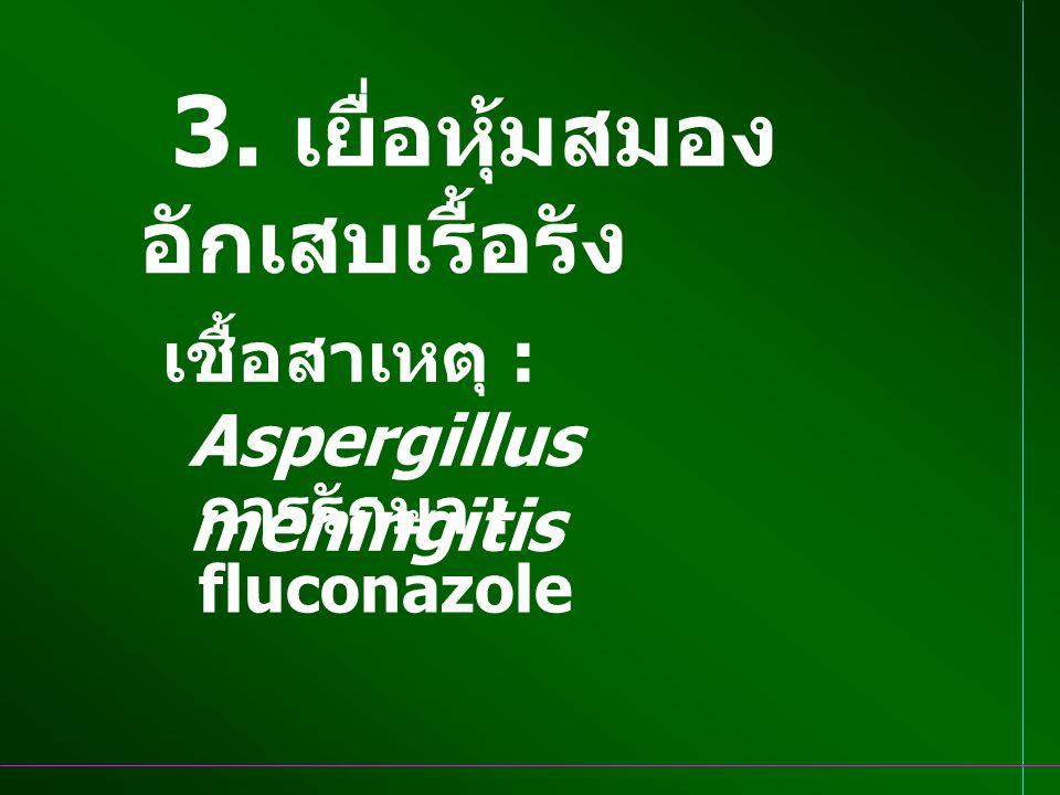 3. เยื่อหุ้มสมอง อักเสบเรื้อรัง เชื้อสาเหตุ : Aspergillus meningitis การรักษา : fluconazole