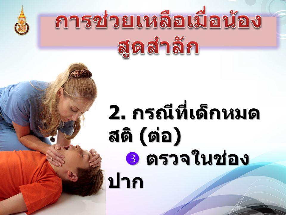 2. กรณีที่เด็กหมด สติ ( ต่อ )  ตรวจในช่อง ปาก