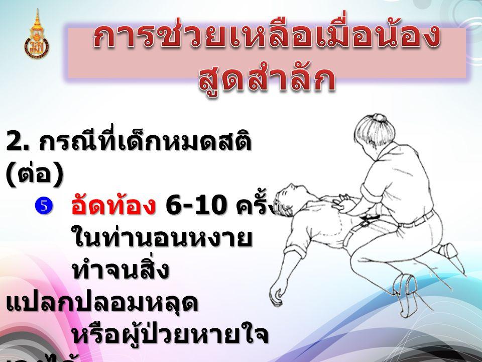 2. กรณีที่เด็กหมดสติ ( ต่อ )  อัดท้อง 6-10 ครั้ง ในท่านอนหงาย ทำจนสิ่ง แปลกปลอมหลุด หรือผู้ป่วยหายใจ เองได้
