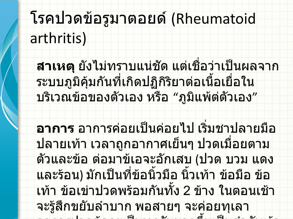 โรคปวดข้อรูมาตอยด์ (Rheumatoid arthritis) สาเหตุ ยังไม่ทราบแน่ชัด แต่เชื่อว่าเป็นผลจาก ระบบภูมิคุ้มกันที่เกิดปฏิกิริยาต่อเนื้อเยื่อใน บริเวณข้อของตัวเอง หรือ ภูมิแพ้ต่ตัวเอง อาการ อาการค่อยเป็นค่อยไป เริ่มชาปลายมือ ปลายเท้า เวลาถูกอากาศเย็นๆ ปวดเมื่อยตาม ตัวและข้อ ต่อมาข้เอจะอักเสบ ( ปวด บวม แดง และร้อน ) มักเป็นที่ข้อนิ้วมือ นิ้วเท้า ข้อมือ ข้อ เท้า ข้อเข่าปวดพร้อมกันทั้ง 2 ข้าง ในตอนเช้า จะรู้สึกขยับลำบาก พอสายๆ จะค่อยทุเลา อาการปวดข้อจะเป็นทุกวันมากขึ้นเป็นลำดับ ถ้า เป็นเรื้อรังหลายปี ข้อจะแข็งและพิการได้