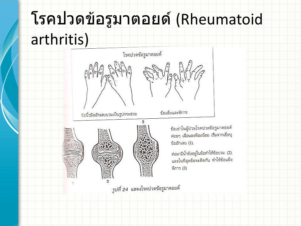 โรคปวดข้อรูมาตอยด์ (Rheumatoid arthritis)