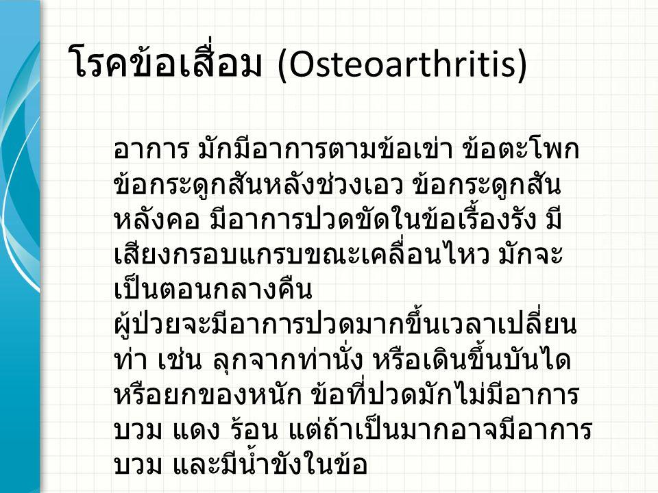 โรคข้อเสื่อม (Osteoarthritis) อาการ มักมีอาการตามข้อเข่า ข้อตะโพก ข้อกระดูกสันหลังช่วงเอว ข้อกระดูกสัน หลังคอ มีอาการปวดขัดในข้อเรื้องรัง มี เสียงกรอบ