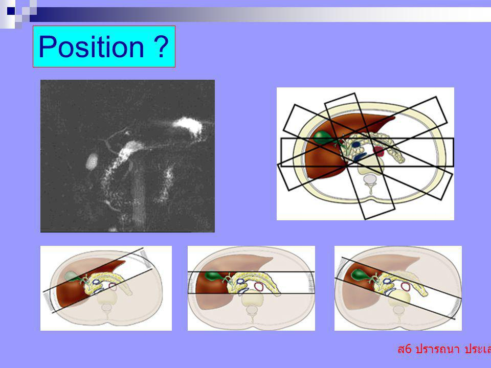 ส 6 ปรารถนา ประเสริฐ Position ?