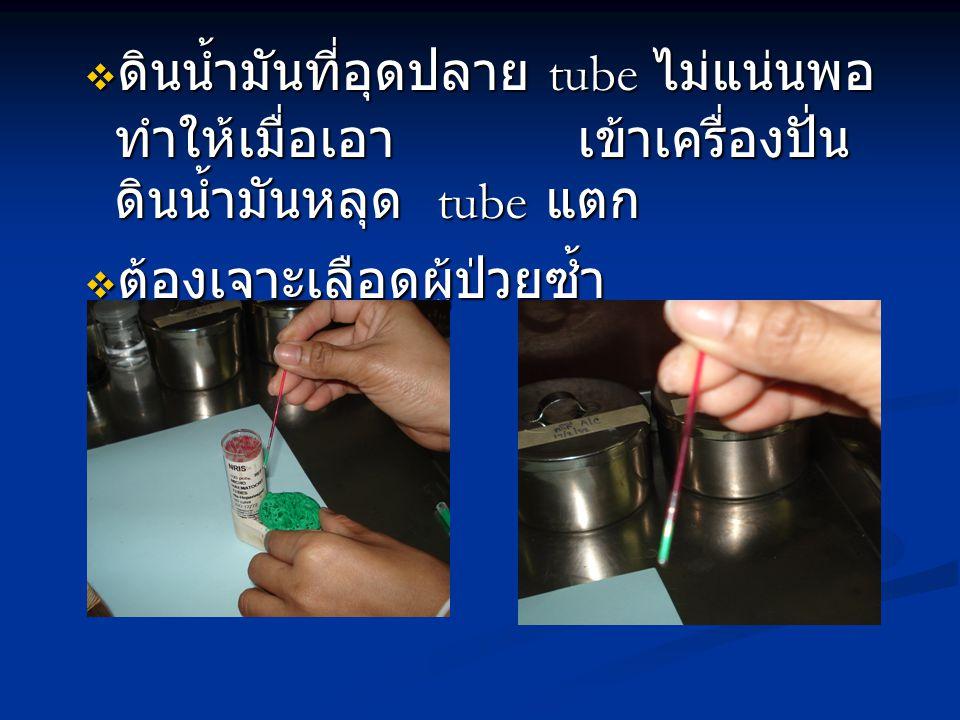  ดินน้ำมันที่อุดปลาย tube ไม่แน่นพอ ทำให้เมื่อเอา เข้าเครื่องปั่น ดินน้ำมันหลุด tube แตก  ต้องเจาะเลือดผู้ป่วยซ้ำ