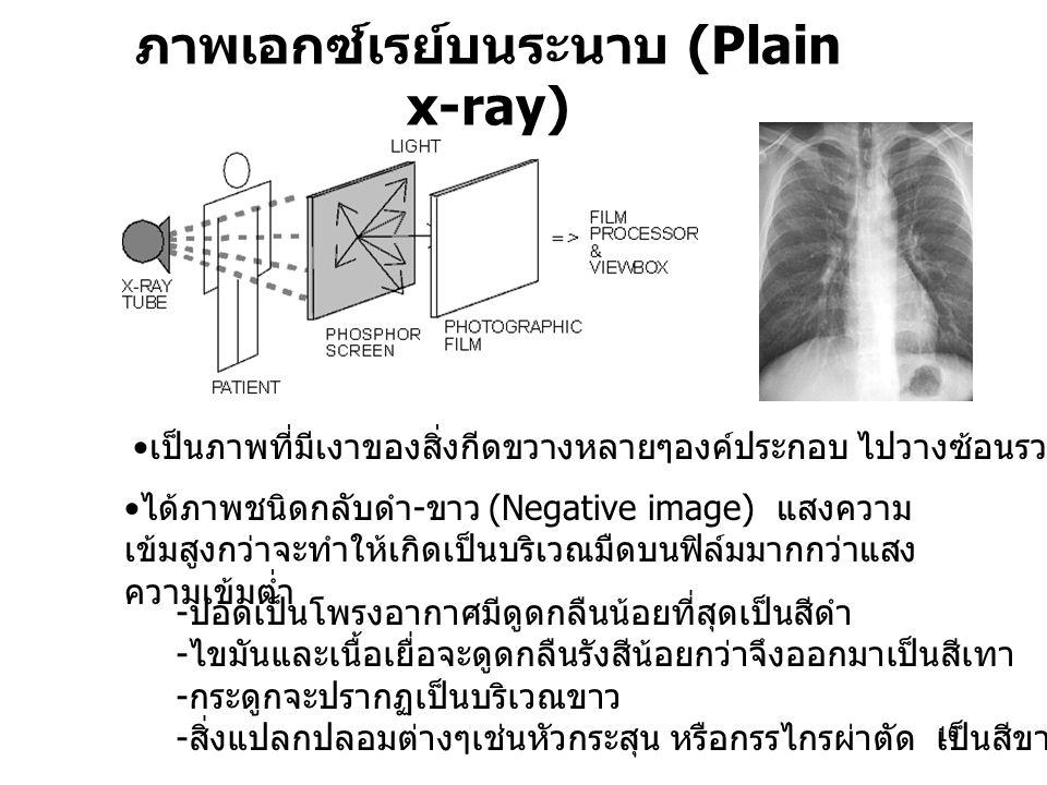 10 ภาพเอกซ์เรย์บนระนาบ (Plain x-ray) ได้ภาพชนิดกลับดำ - ขาว (Negative image) แสงความ เข้มสูงกว่าจะทำให้เกิดเป็นบริเวณมืดบนฟิล์มมากกว่าแสง ความเข้มต่ำ