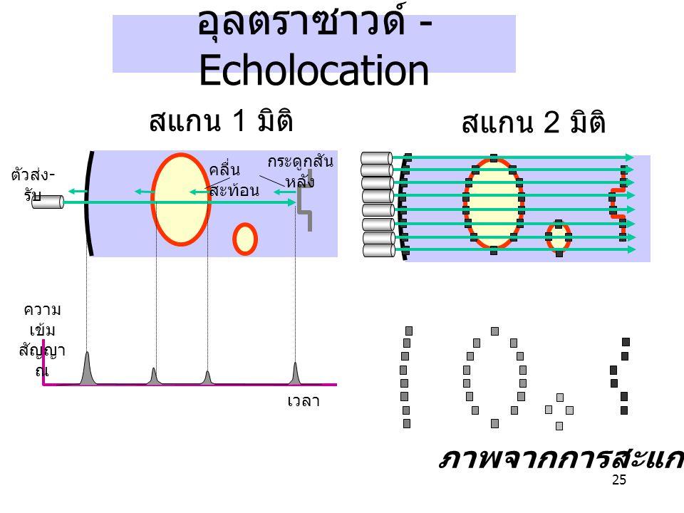 25 อุลตราซาวด์ - Echolocation เวลา ความ เข้ม สัญญา ณ คลื่น สะท้อน กระดูกสัน หลัง ตัวส่ง - รับ สแกน 1 มิติ ภาพจากการสะแกน สแกน 2 มิติ