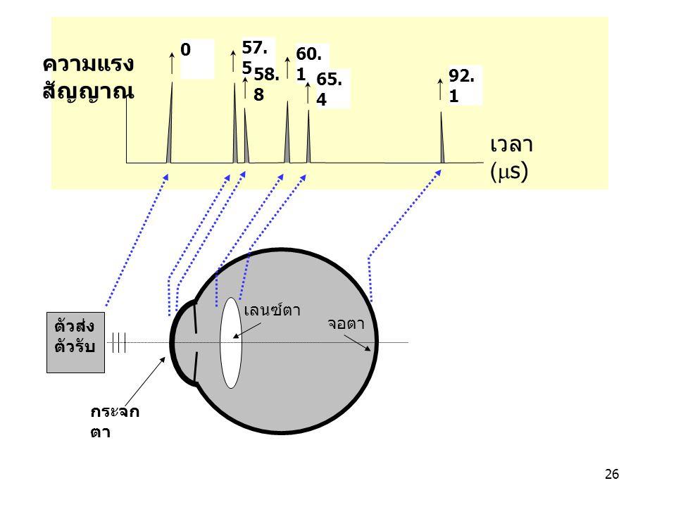 26 เลนซ์ตา จอตา ตัวส่ง ตัวรับ 0 57. 5 58. 8 60. 1 65. 4 92. 1 เวลา (  s) กระจก ตา ความแรง สัญญาณ