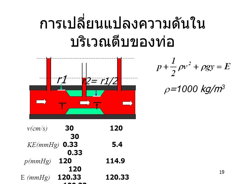 19 การเปลี่ยนแปลงความดันใน บริเวณตีบของท่อ v(cm/s) 30 120 30 KE(mmHg) 0.33 5.4 0.33 p(mmHg) 120 114.9 120 E (mmHg) 120.33 120.33 120.33 r1 r2= r1/2 