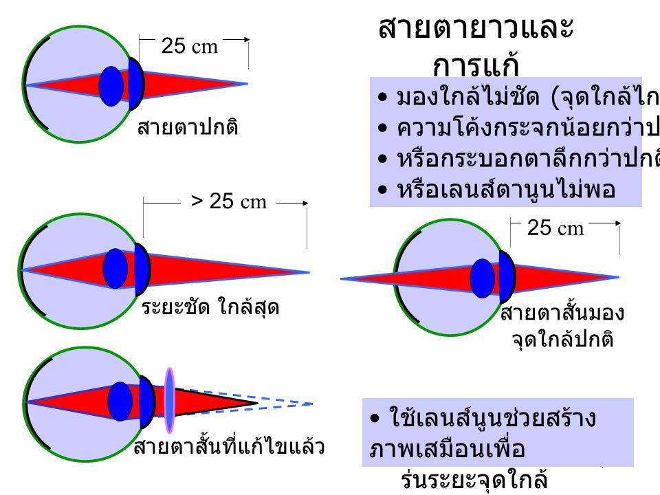 4 สายตายาวและ การแก้ มองใกล้ไม่ชัด ( จุดใกล้ไกลกว่าปกติ ) ความโค้งกระจกน้อยกว่าปกติ หรือกระบอกตาลึกกว่าปกติ หรือเลนส์ตานูนไม่พอ ใช้เลนส์นูนช่วยสร้าง ภ