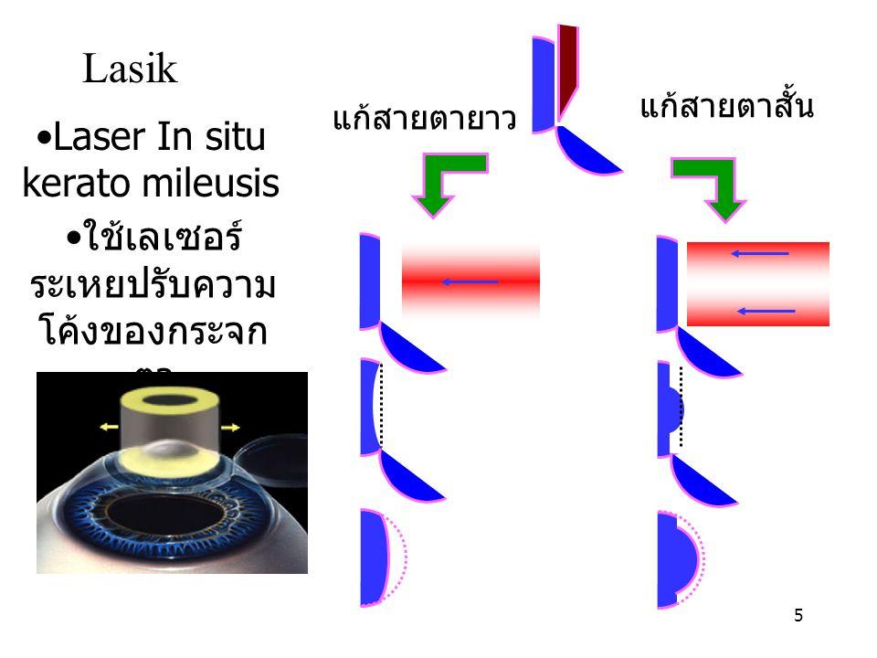 5 ใช้เลเซอร์ ระเหยปรับความ โค้งของกระจก ตา Lasik แก้สายตาสั้น แก้สายตายาว Laser In situ kerato mileusis