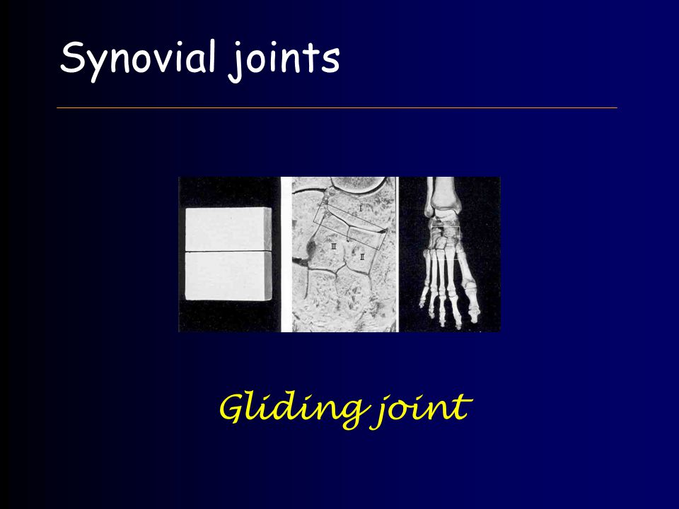 Synovial joints Gliding joint