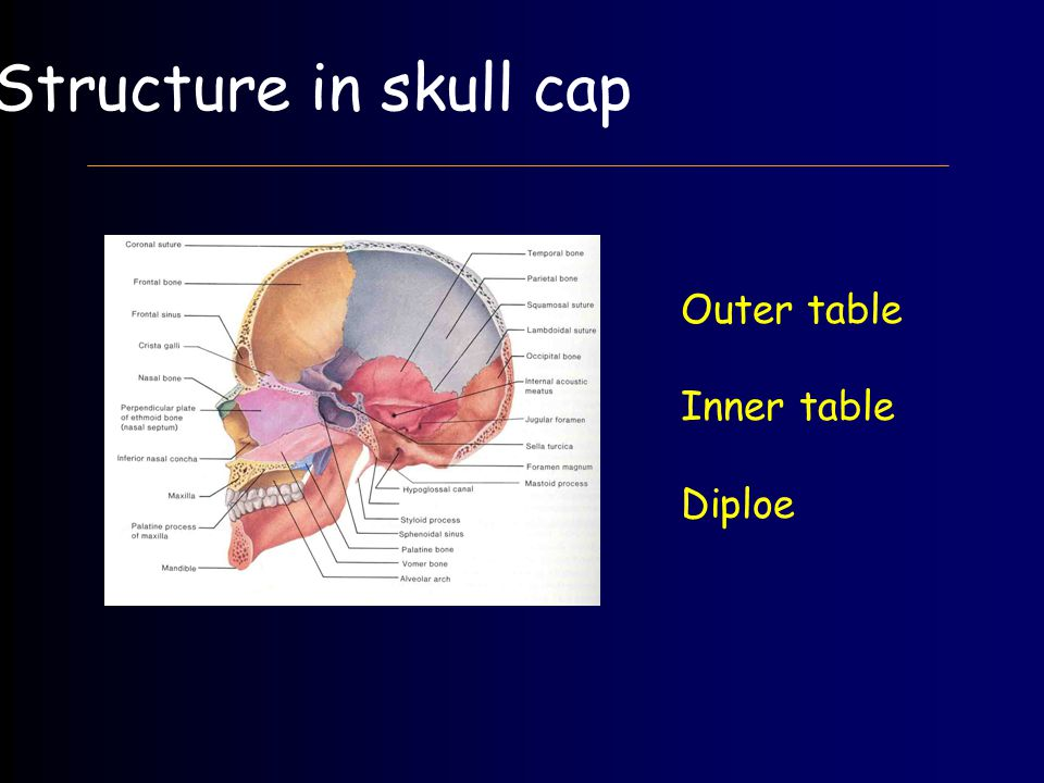 Outer table Inner table Diploe Structure in skull cap