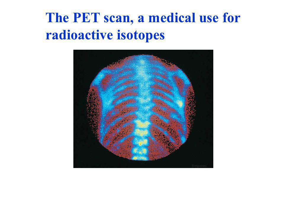 The PET scan, a medical use for radioactive isotopes