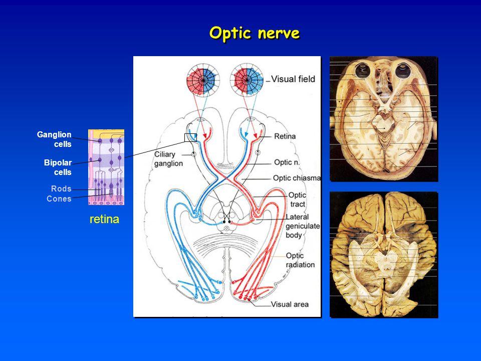 Optic nerve retina Ganglion cells Bipolar cells Rods Cones