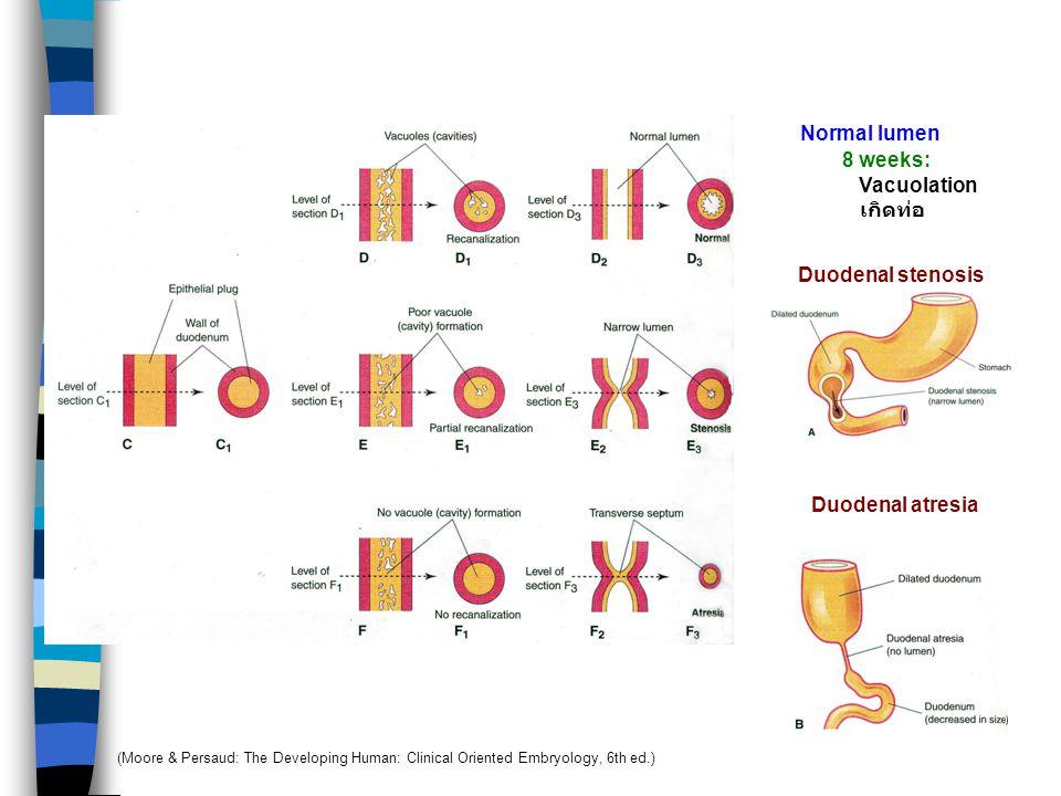Duodenum 5 wks 4 wks 5 wks 6 wks 4 weeks: Duodenum พัฒนาจาก 1. Caudal part of foregut 2. Cranial part of midgut 3. Splanchnic mesenchyme เจริญเร็วเกิด