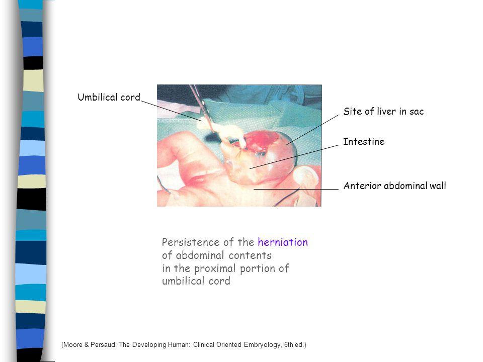 Caecum and Vermiform appendix 8 wks12 wks 6 wks At birth Adult หลังคลอด ผนังของ cecum เจริญไม่เท่ากัน Appendix เคลื่อนไปอยู่ด้าน medial Ascending colo