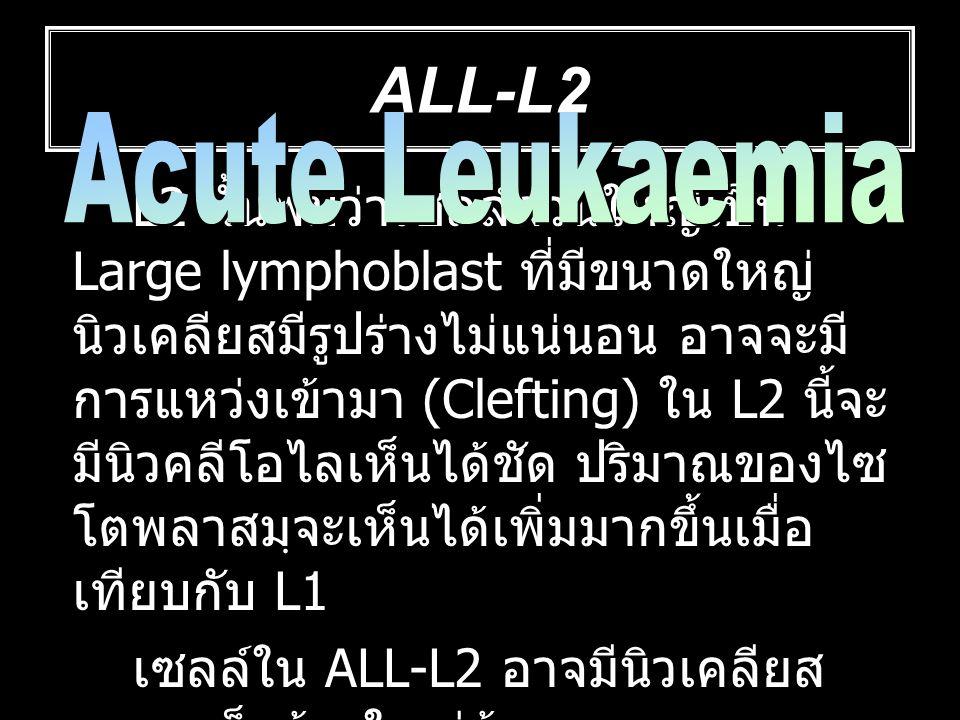 ALL-L2 L2 นั้นพบว่าเซลล์ส่วนใหญ่เป็น Large lymphoblast ที่มีขนาดใหญ่ นิวเคลียสมีรูปร่างไม่แน่นอน อาจจะมี การแหว่งเข้ามา (Clefting) ใน L2 นี้จะ มีนิวคล