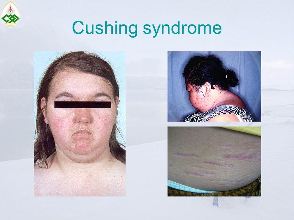 Cushing syndrome
