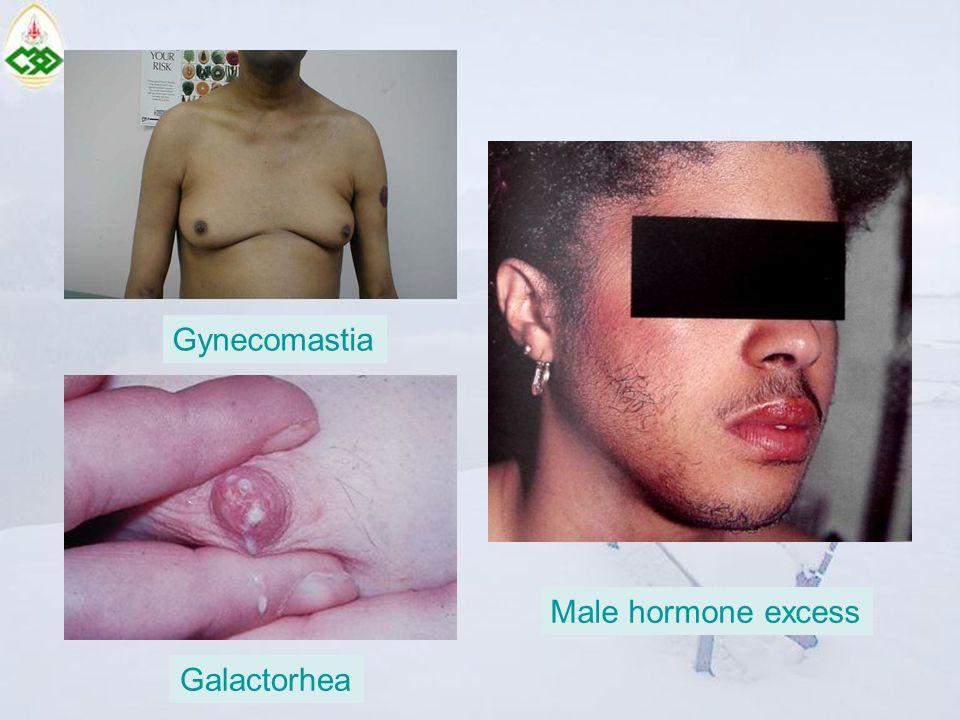 Male hormone excess Gynecomastia Galactorhea