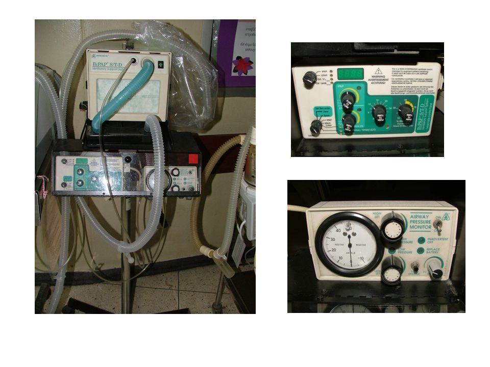 2. Positive Pressure(NIPPV) Higher than atmospheric pressure Push air into the lung Can be provided with artificial airway (variety Interface) TYPE of