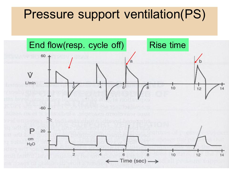Typically used in the SIMV mode to facilitate weaning in a difficult to wean patient 1.Increase spontaneous Vt (set PS until a desired spontaneous Vt) 2.Decrease spontaneous respiratory rate (set PS until a desired spontaneous RR) 3.Decrease the work of breathing Pressure support ventilation(PS)