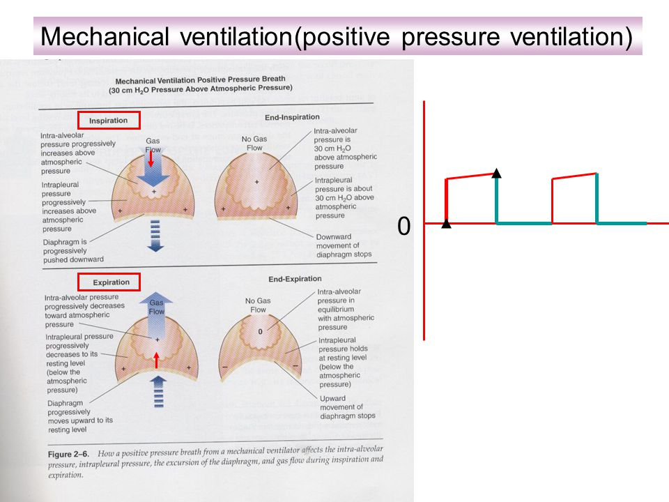 Normal breathing (Negative pressure breath) pressure 0 +2+2 -2
