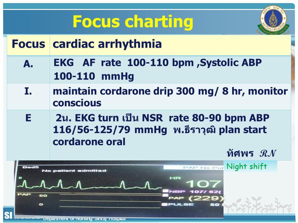 Focuscardiac arrhythmia A.