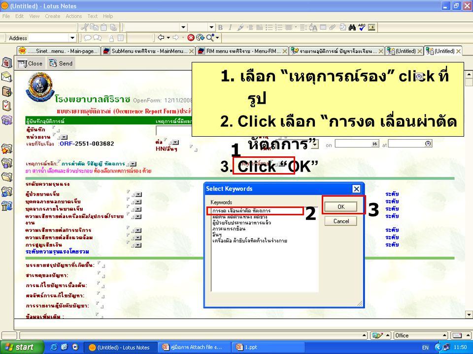 1 1.เลือก เหตุการณ์รอง click ที่ รูป 2. Click เลือก การงด เลื่อนผ่าตัด หัตถการ 3.