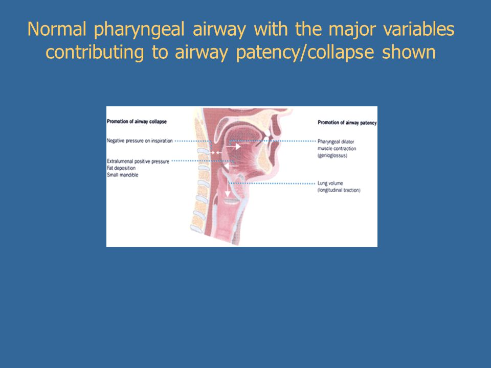 Normal pharyngeal airway with the major variables contributing to airway patency/collapse shown
