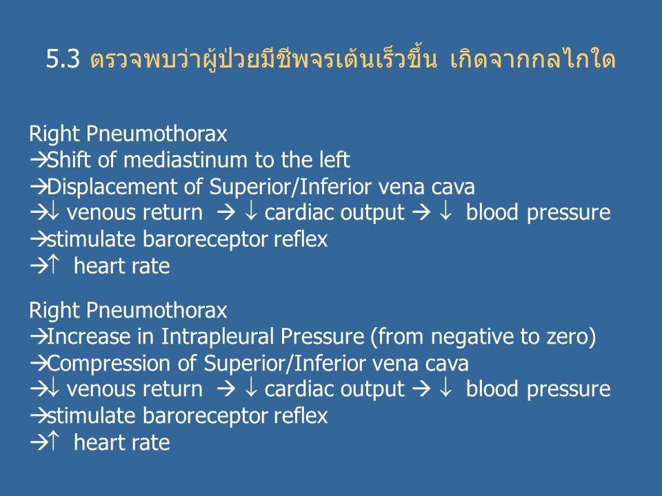 5.3 ตรวจพบว่าผู้ป่วยมีชีพจรเต้นเร็วขึ้น เกิดจากกลไกใด Right Pneumothorax  Shift of mediastinum to the left  Displacement of Superior/Inferior vena cava   venous return   cardiac output   blood pressure  stimulate baroreceptor reflex   heart rate Right Pneumothorax  Increase in Intrapleural Pressure (from negative to zero)  Compression of Superior/Inferior vena cava   venous return   cardiac output   blood pressure  stimulate baroreceptor reflex   heart rate