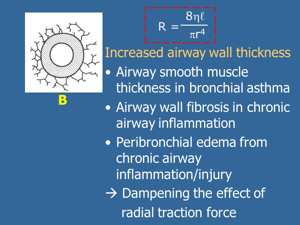 B R = 8ℓ8ℓ r4r4 Increased airway wall thickness Airway smooth muscle thickness in bronchial asthma Airway wall fibrosis in chronic airway inflammation Peribronchial edema from chronic airway inflammation/injury  Dampening the effect of radial traction force