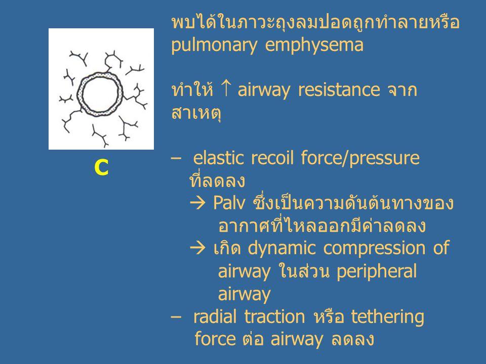 C พบได้ในภาวะถุงลมปอดถูกทำลายหรือ pulmonary emphysema ทำให้  airway resistance จาก สาเหตุ – elastic recoil force/pressure ที่ลดลง  Palv ซึ่งเป็นความดันต้นทางของ อากาศที่ไหลออกมีค่าลดลง  เกิด dynamic compression of airway ในส่วน peripheral airway – radial traction หรือ tethering force ต่อ airway ลดลง
