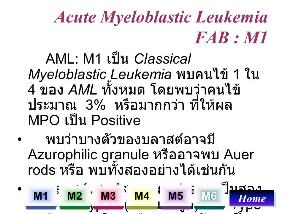 Acute Myeloblastic Leukemia FAB : M1 AML: M1 เป็น Classical Myeloblastic Leukemia พบคนไข้ 1 ใน 4 ของ AML ทั้งหมด โดยพบว่าคนไข้ ประมาณ 3% หรือมากกว่า ท