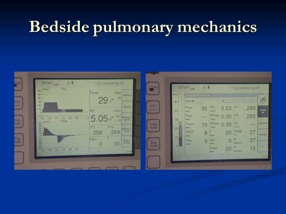 Bedside pulmonary mechanics