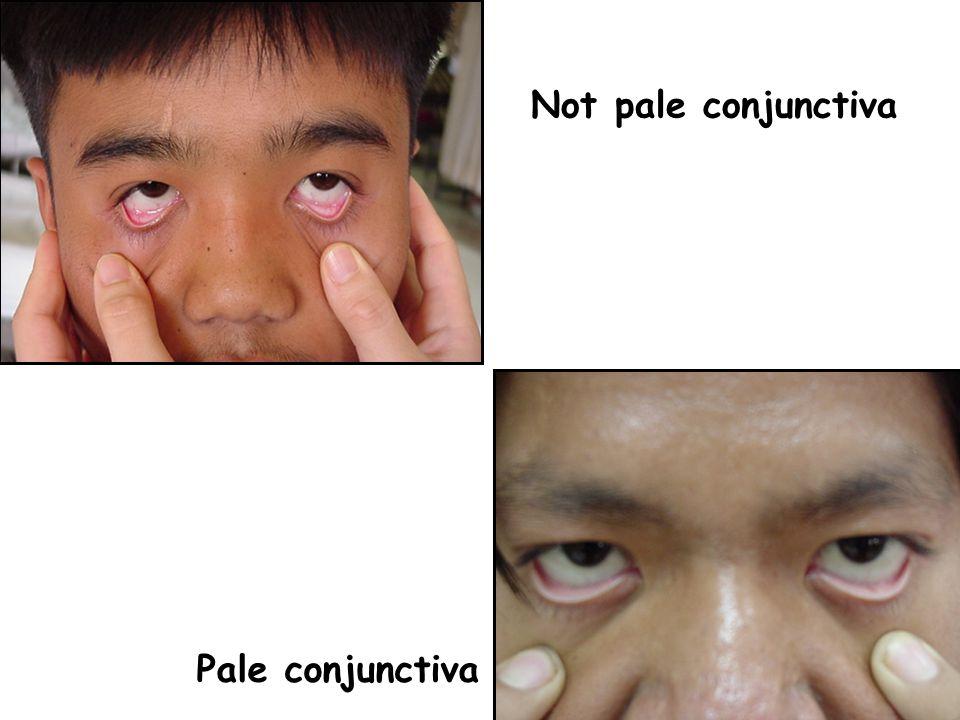 Not pale conjunctiva Pale conjunctiva