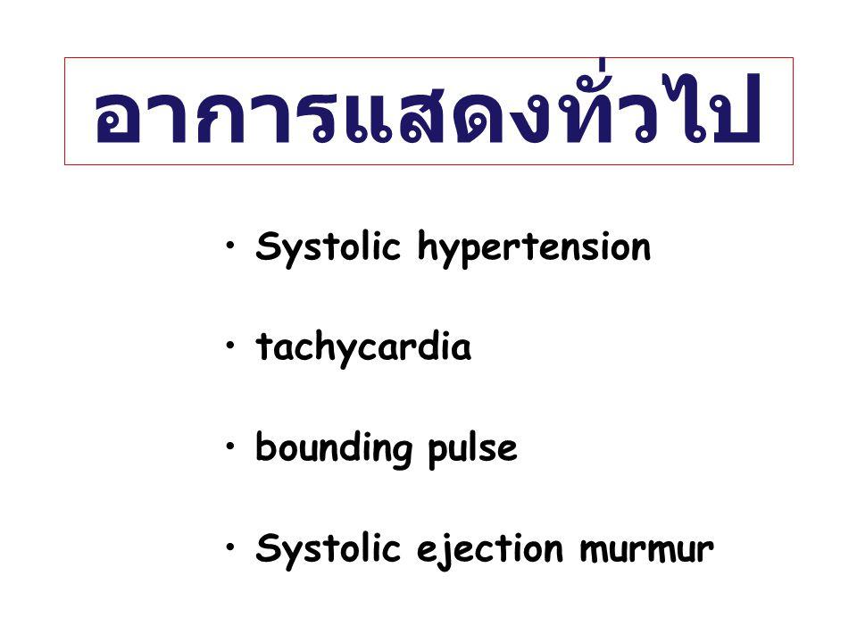 อาการแสดงทั่วไป Systolic hypertension tachycardia bounding pulse Systolic ejection murmur