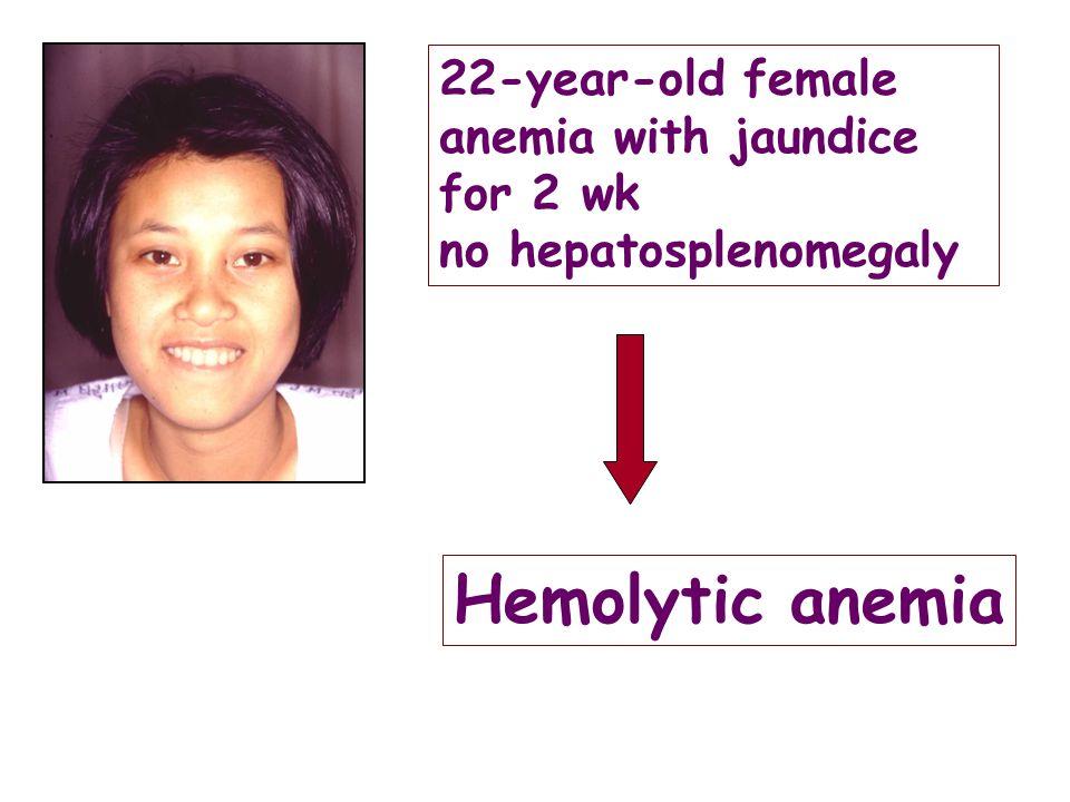 22-year-old female anemia with jaundice for 2 wk no hepatosplenomegaly Hemolytic anemia