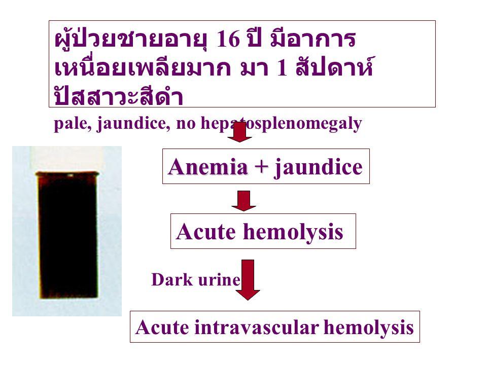 ผู้ป่วยชายอายุ 16 ปี มีอาการ เหนื่อยเพลียมาก มา 1 สัปดาห์ ปัสสาวะสีดำ pale, jaundice, no hepatosplenomegaly Anemia + Anemia + jaundice Acute hemolysis