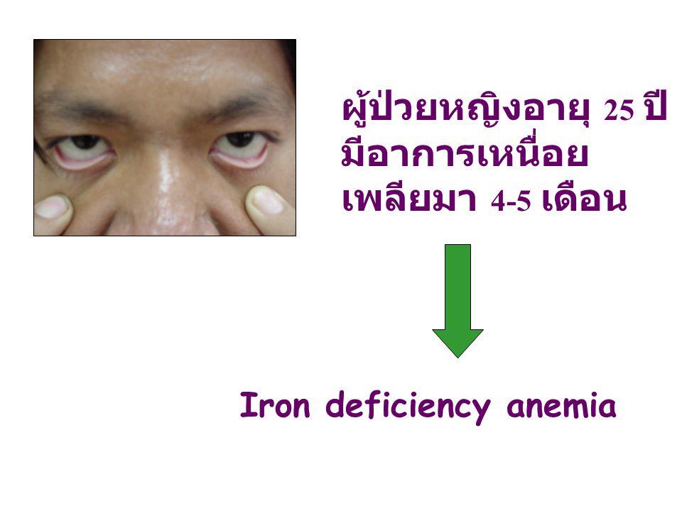 ผู้ป่วยหญิงอายุ 25 ปี มีอาการเหนื่อย เพลียมา 4-5 เดือน Iron deficiency anemia