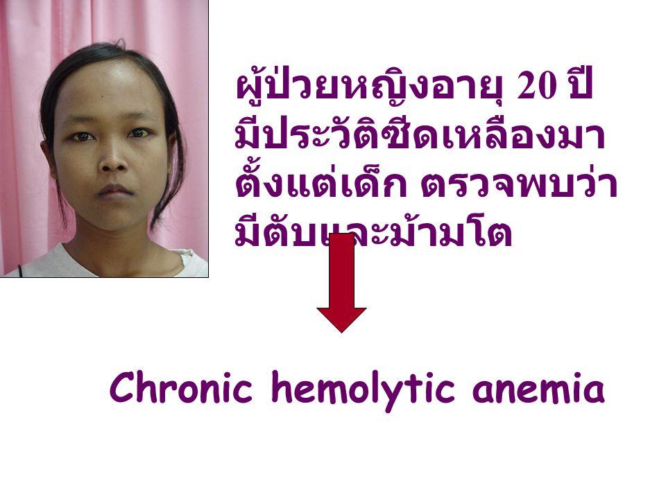 ผู้ป่วยหญิงอายุ 20 ปี มีประวัติซีดเหลืองมา ตั้งแต่เด็ก ตรวจพบว่า มีตับและม้ามโต Chronic hemolytic anemia