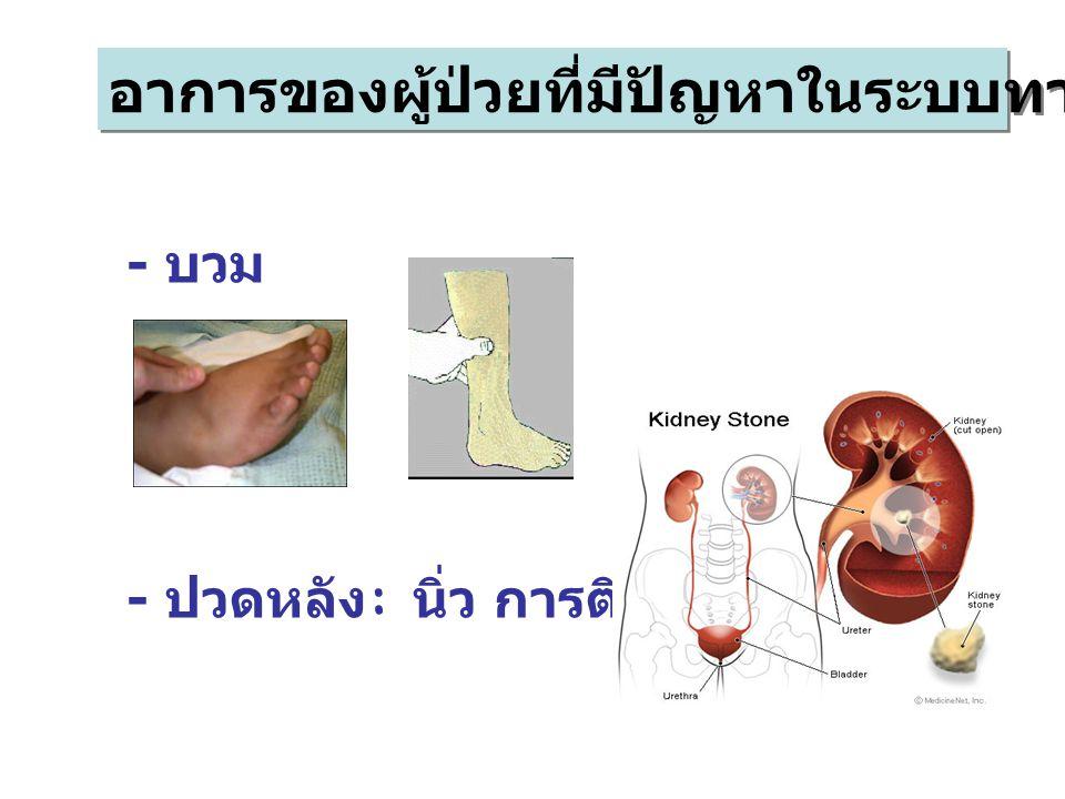 อาการของผู้ป่วยที่มีปัญหาในระบบทางเดินปัสสาวะ - บวม - ปวดหลัง : นิ่ว การติดเชื้อ