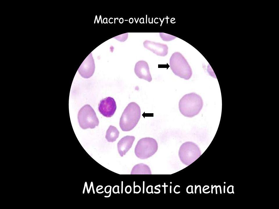Megaloblastic anemia Macro-ovalucyte